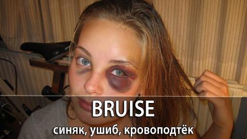 3Bruise