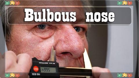 9 Bulbous nose